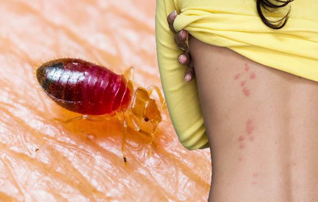 home remedies for bed bugs killing bite